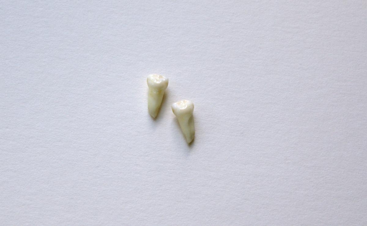 Teeth - 2 (3)